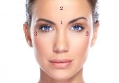 Behandling av rynkor med botox