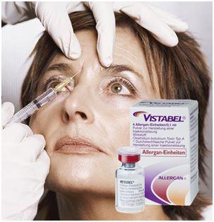 Botox heter Vistabel när   det används mot rynkor